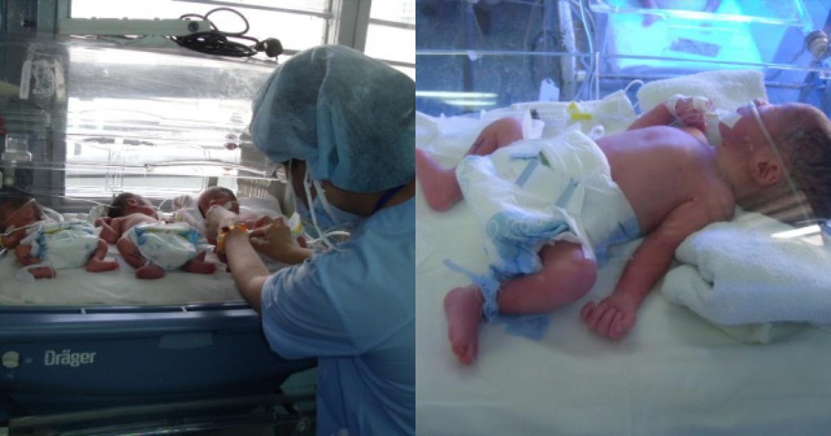 """Sản phụ sinh cùng lúc 4 bé, bác sĩ """"toát mồ hôi"""""""