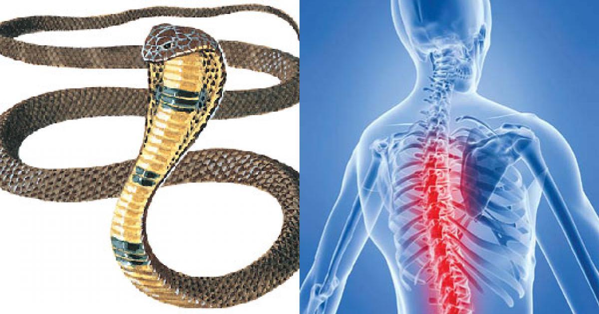 Cao rắn hổ mang - thuốc quý trị thoái hóa cột sống
