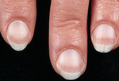 Bàn tay nói lên nhiều điều về sức khỏe - Hình 2