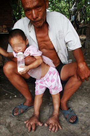 Bé gái 3 tuổi có đôi chân quái vật - Hình 2