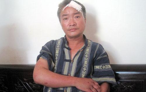 Nhóm hành hung ở Văn Giang thuộc đơn vị thi công - Hình 1