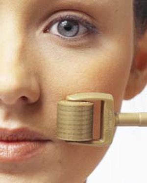 Phương pháp trị sẹo lõm mới nhất hiện nay. - Hình 1