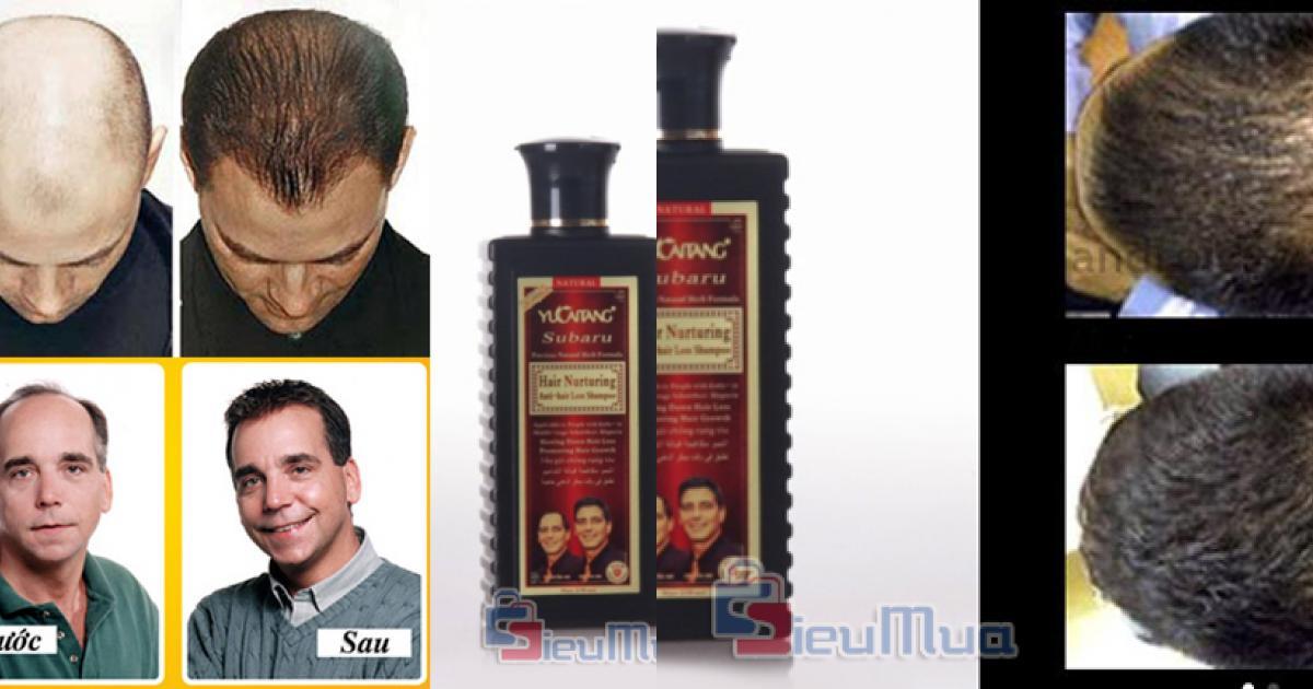 Dầu gội đầu Hair Nurturing Anti-Hair Loss Shampoo giá chỉ có 125.000đ, chống rụng tóc và làm cho tóc mọc nhanh hơn.