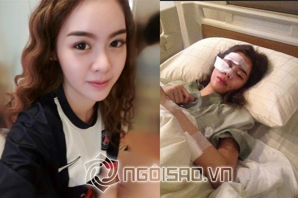 Mỹ nhân Thái suýt hỏng gương mặt vì tai nạn xe nghiêm trọng - Hình 6