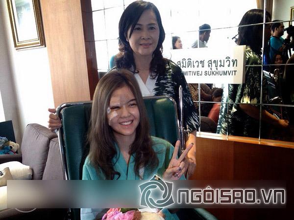 Mỹ nhân Thái suýt hỏng gương mặt vì tai nạn xe nghiêm trọng - Hình 2