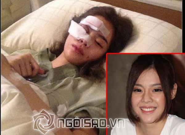 Mỹ nhân Thái suýt hỏng gương mặt vì tai nạn xe nghiêm trọng - Hình 1