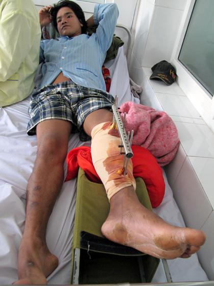 Chàng trai Khơ Mú nguy cơ cụt 1 chân vì thiếu 10 triệu đồng