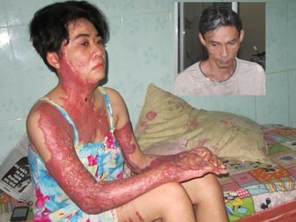 Tâm sự đắng lòng của người vợ bị chồng tạt xăng vì máu đỏ đen tai sex 1