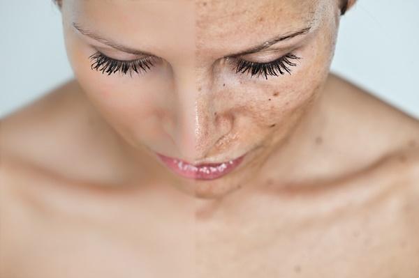Kiên trì dưỡng da, bao lâu thì có kết quả? - Hình 3