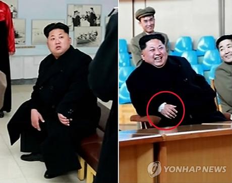 Xuất hiện vật lạ trên cổ tay ông Kim Jong-un - Hình 1