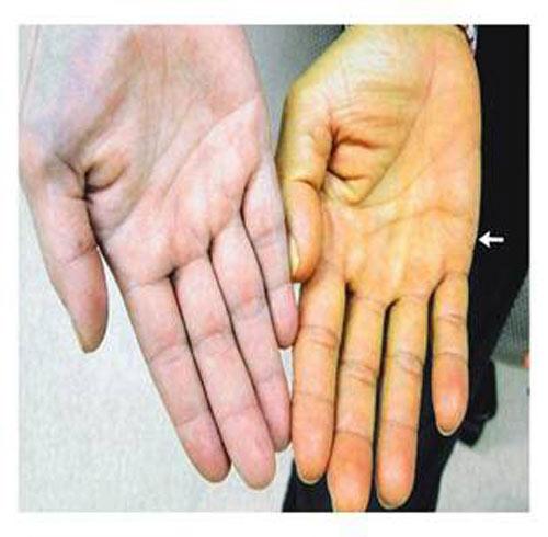 Các dấu hiệu cảnh báo sớm bệnh ung thư gan - Hình 2