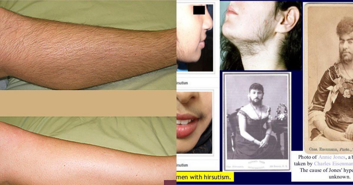 """Điều kinh hoàng gì đã khiến nữ giới luôn mịn màng lại """"lắm lông"""" thế này?"""