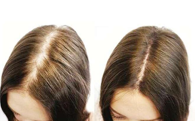 Lá ổi – phép lạ để sở hữu mái tóc và làn da đẹp