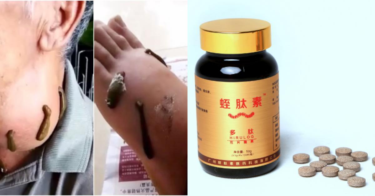 Thực hư dùng đỉa chữa 'bách bệnh' ở Trung Quốc