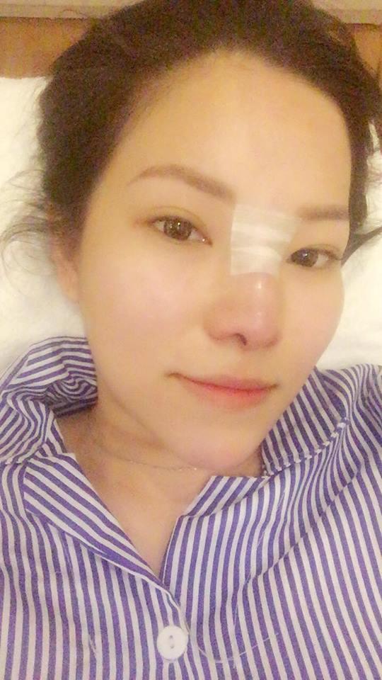 Tình mới Lâm Vinh Hải lột xác khi biết vợ cũ sửa mũi, tiêm môi?