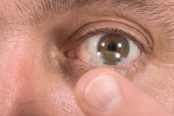 Khó tin: Để quên 27 kính áp tròng trong mắt