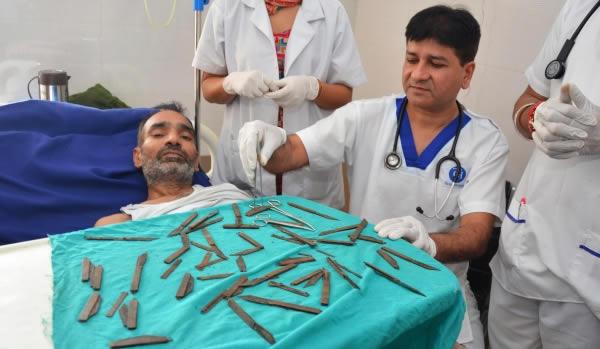 Những thứ được lấy ra từ bụng bệnh nhân khiến bác sĩ không tin nổi, số 1 quá đáng sợ