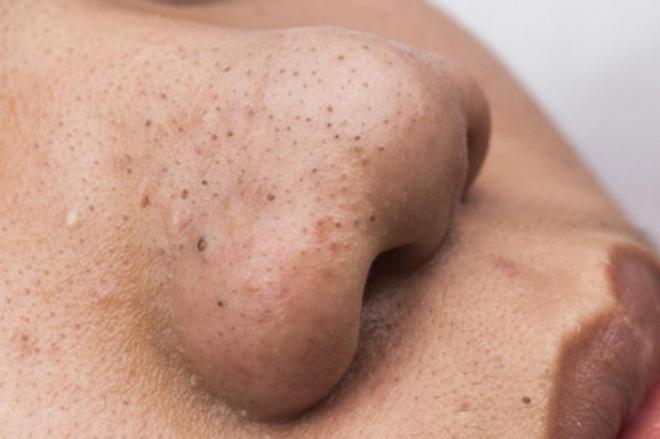 Đi tìm phương pháp trị mụn đầu đen hiệu quả nhất mà không làm tổn hại làn da
