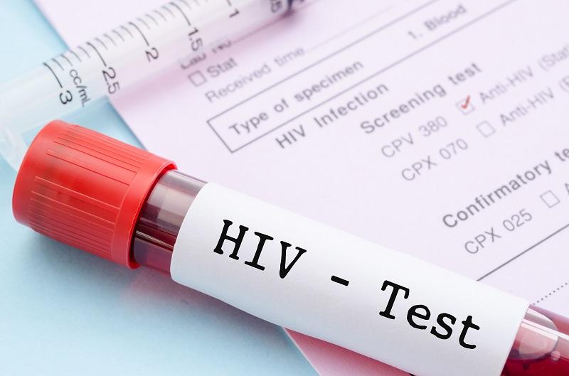 Lo sợ nhiễm HIV vì một lần trót lỡ