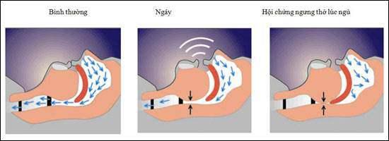 Hội chứng ngừng thở khi ngủ: Kẻ giết người thầm lặng