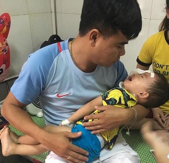 Bé 2 tuổi ở Nghệ An bị chó becgie cắn tổn thương mặt - Hình 1
