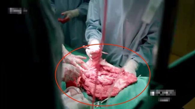 Sạn trời ơi Hậu Duệ Mặt Trời Việt: Dùng tảng thịt phẫu thuật, gọi video nhưng vô tư che camera - Hình 2