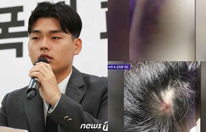 Nhóm nhạc Kpop đâm đơn kiện nhà sản xuất vì tội bạo hành - Hình 1