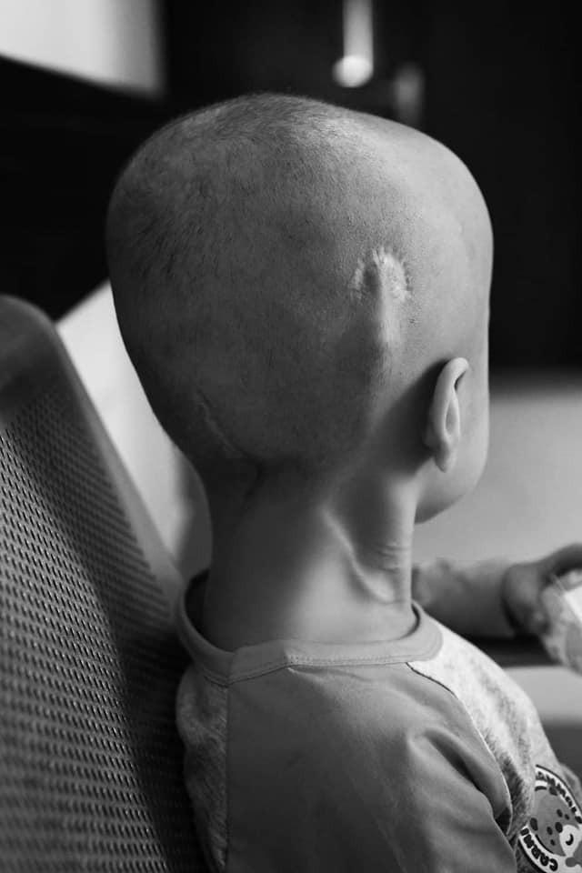24 giờ của Tom - bộ ảnh xúc động của một người mẹ có con trai bị ung thư não khi mới 33 tháng tuổi - Hình 1