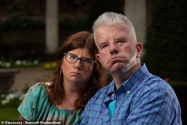Cặp đôi cùng mắc bệnh lạ kết hôn sau một thời gian hẹn hò trực tuyến - Hình 1