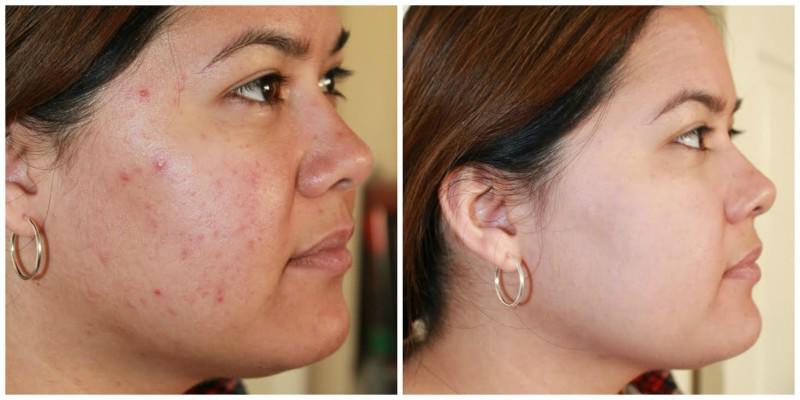 4 công thức tự làm mặt nạ nha đam ngay tại nhà giúp nàng dưỡng da hiệu quả - Hình 2