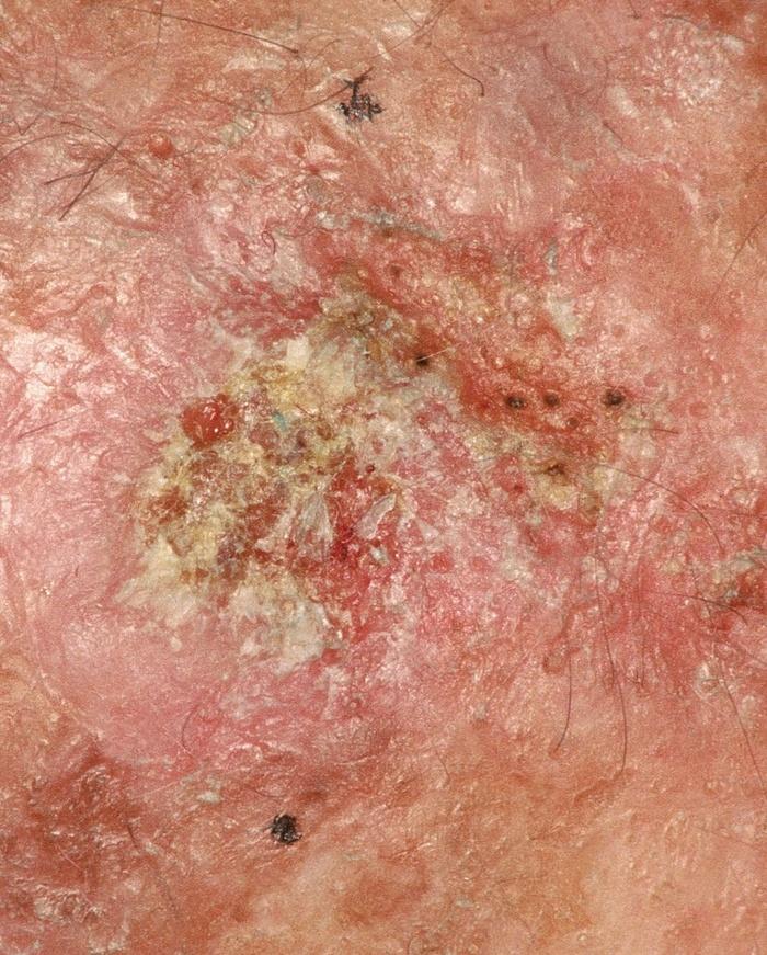 Nắng nóng thế này, tia UV cực nhiều, phải biết những dạng ung thư da hay gặp còn phòng tránh - Hình 2