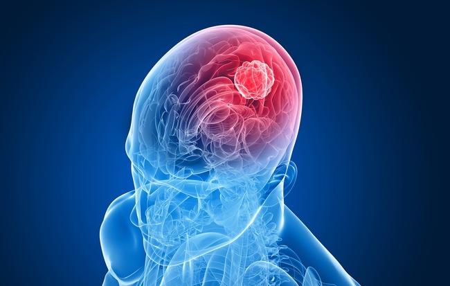 Cẩn thận với những dấu hiệu tố cáo bạn đang có một khối u não - Hình 1