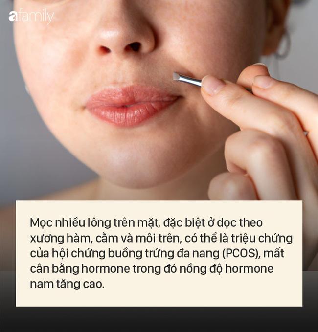 8 dấu hiệu cảnh báo bệnh được khắc rất rõ trên khuôn mặt của bạn - Hình 2