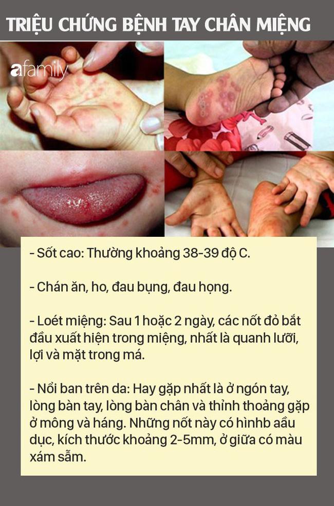 Những việc cha mẹ nào cũng nên làm để phòng bệnh tay chân miệng cho con - Hình 2