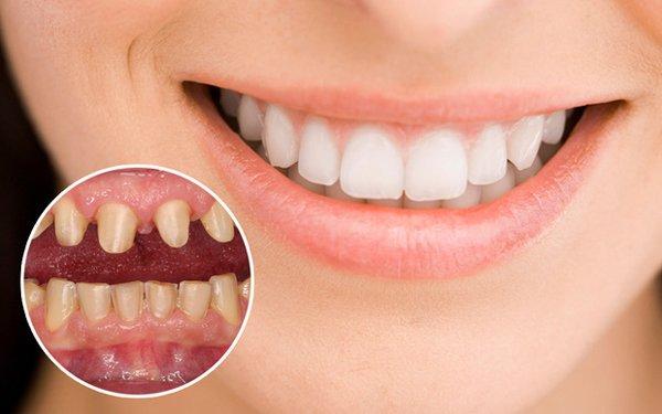 Những điều bạn nhất định phải biết trước khi tiến hành bọc răng sứ - Hình 1