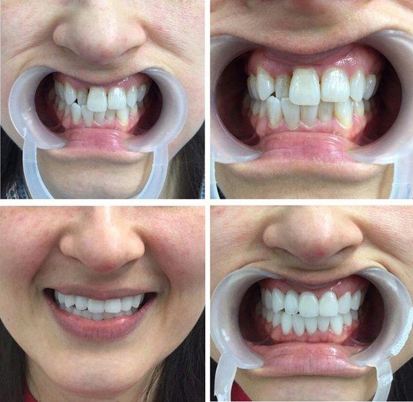 Những điều bạn nhất định phải biết trước khi tiến hành bọc răng sứ - Hình 2