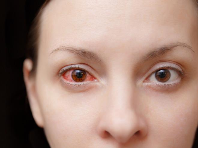 Chú ý: Loạt bệnh nguy hiểm mang biểu hiện ngứa mắt khi mùa thu đến - Hình 1