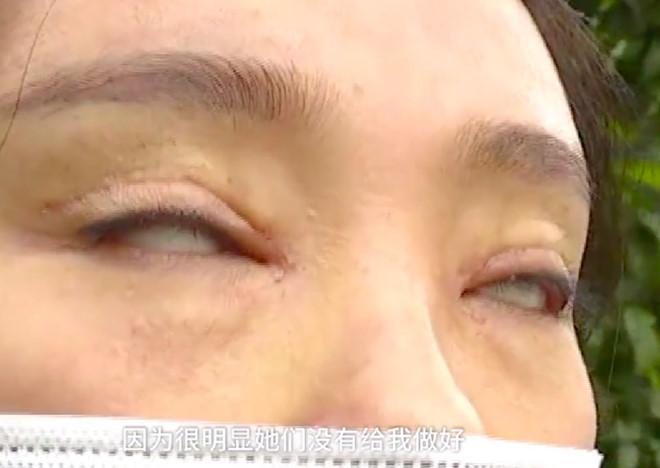 Không thể nhắm mắt, thị lực giảm sút sau 2 lần cắt mí mất 2.100 USD - Hình 3