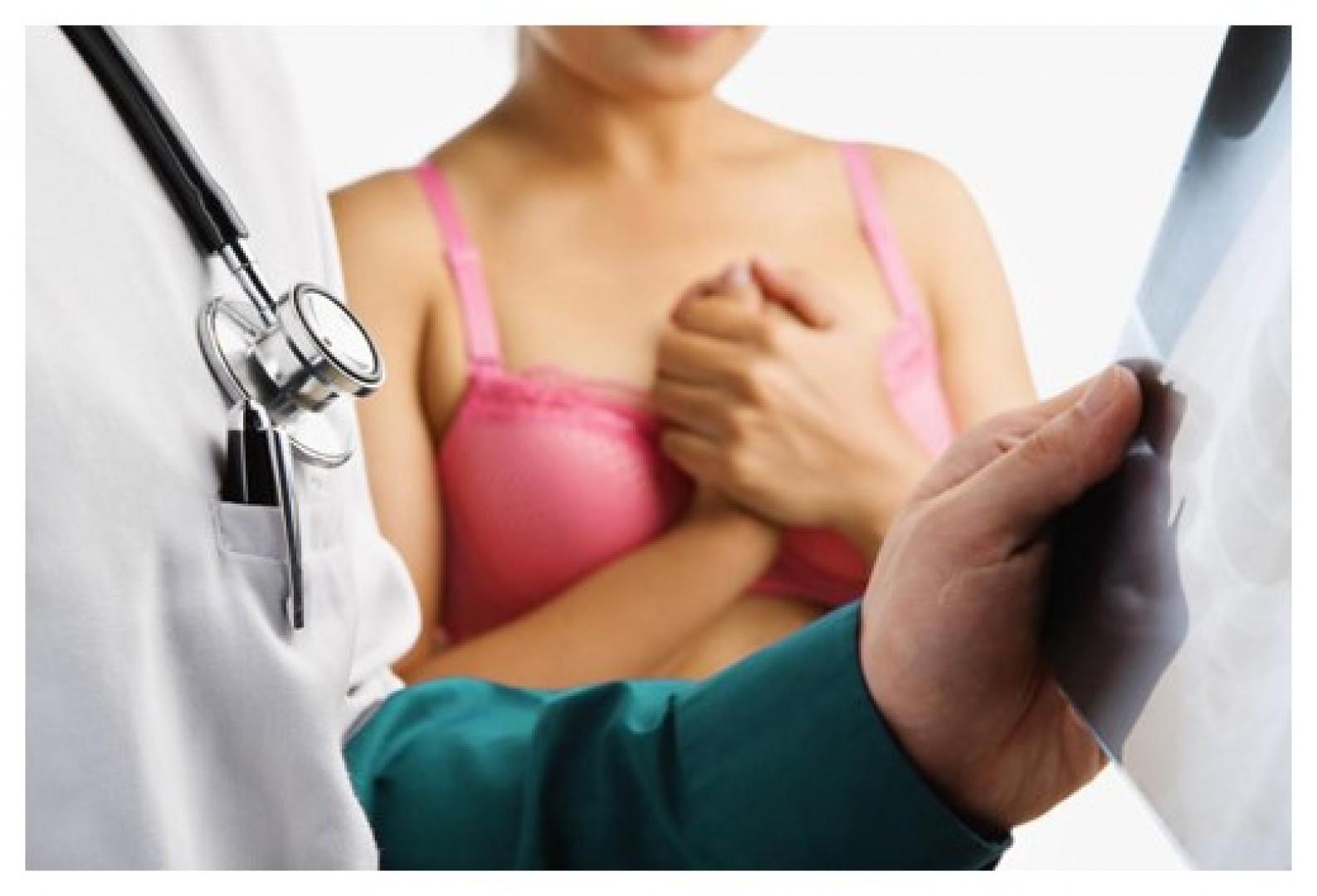 Ai dễ mắc bệnh ung thư khiến 16 chị em tử vong mỗi ngày? - Hình 1