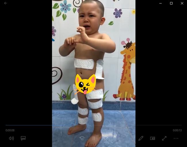 Cười chảy nước mắt với bé trai 2 tuổi lấy băng vệ sinh dán khắp người vì nghĩ đó là... băng dán vết thương - Hình 2