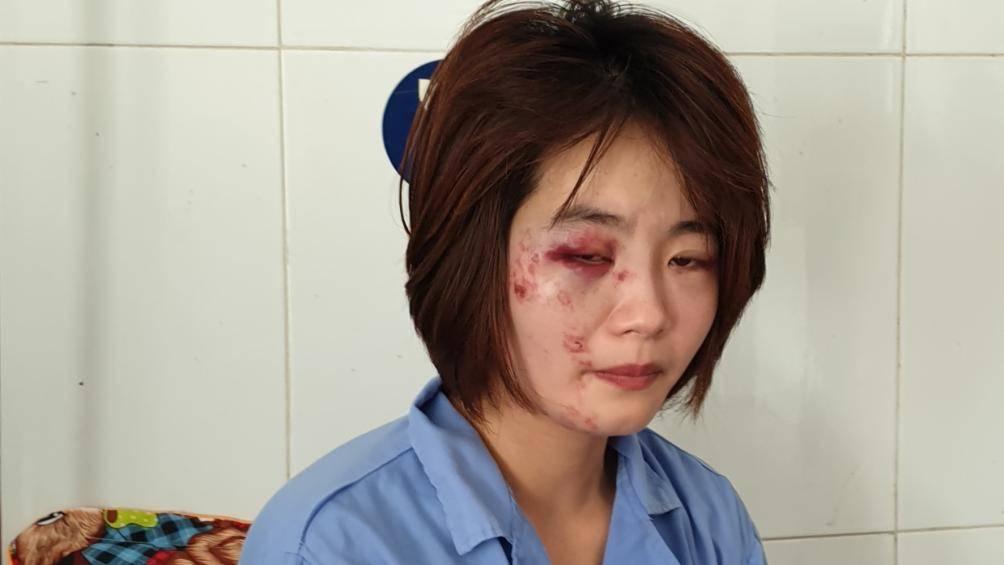 Danh tính 2 đối tượng đánh nữ nhân viên phục vụ xe buýt ở Hà Nội nhập viện - Hình 1