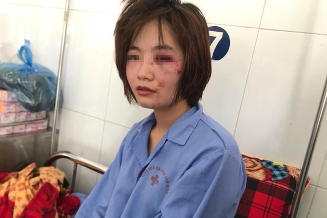 Cảnh sát làm rõ nhóm đánh nữ phụ xe buýt nhập viện - Hình 1