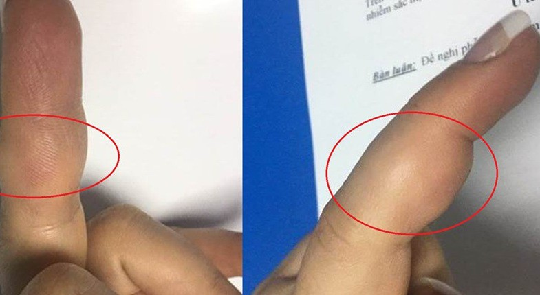 Sưng đau ở ngón tay đi khám ra u tế bào khổng lồ - Hình 1