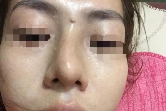 Yên Bái: Bé gái 13 tuổi bị mù sau khi giấu mẹ đi nâng mũi trả góp - Hình 1