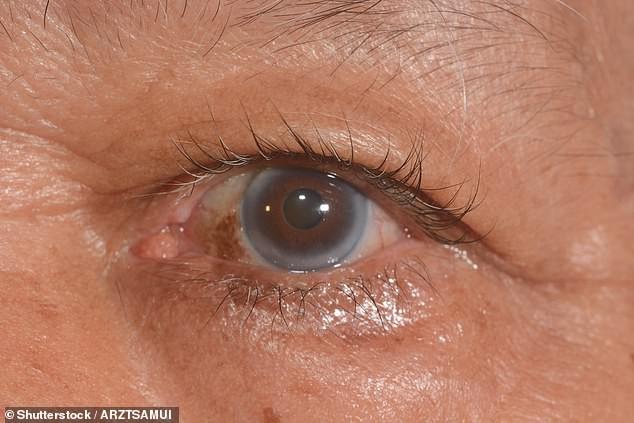 9 dấu hiệu bất thường trên đôi mắt cảnh báo bệnh tật nguy hiểm - Hình 7