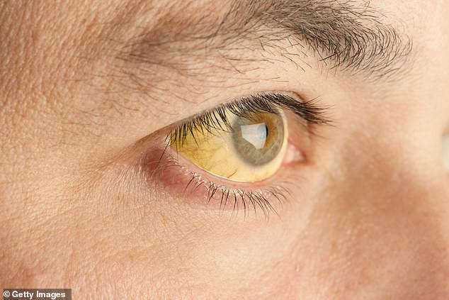 9 dấu hiệu bất thường trên đôi mắt cảnh báo bệnh tật nguy hiểm - Hình 3