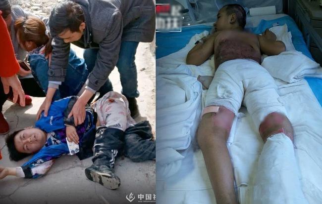 Đang chơi cát bên đường, bé trai 8 tuổi không để ý bị xe tải tông, kéo lê vài mét làm tổn thương toàn thân nghiêm trọng - Hình 1