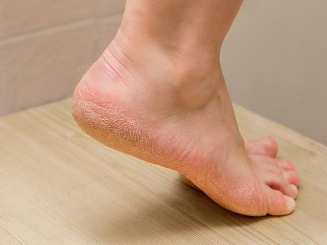 Tưởng mụn cóc ở chân, bàng hoàng khi biết đó là ung thư da nguy hiểm - Hình 1