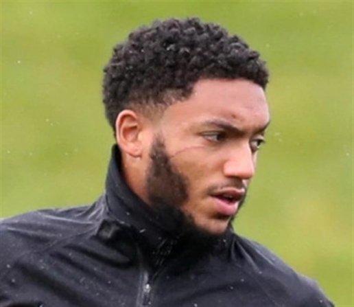 Bị Sterling cay cú, sao Liverpool thành gã mặt sẹo - Hình 4