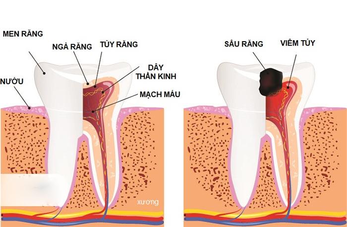Bọc răng sứ là gì? Những tác hại và biến chứng nguy hiểm khi bọc răng sứ - Hình 2